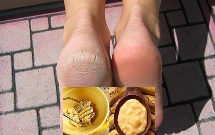 Bệnh nứt gót chân gây ảnh hưởng cho việc đi lại của bạn