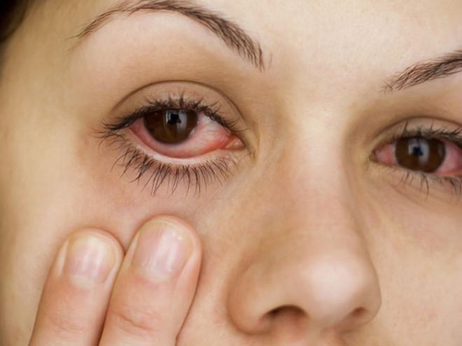 Người bị đau mắt đỏ