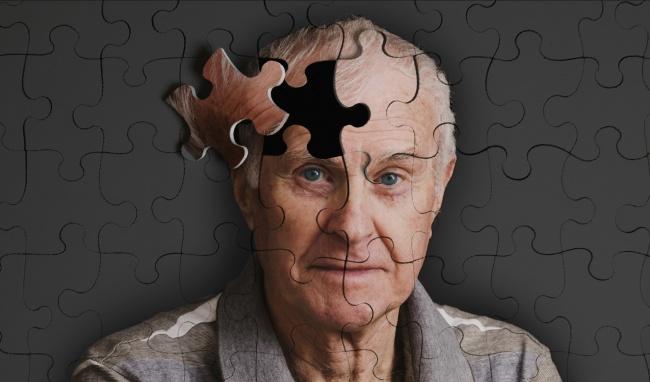 Nguyên nhân bệnh Alzheimer chưa được tìm rõ