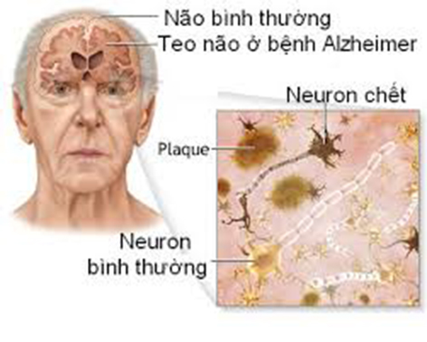 Các nơ-ron thần kinh của bệnh nhân Alzheimer bị chết một cách từ từ