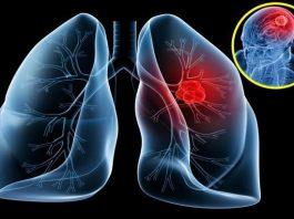 triệu chứng đầu tiên của bệnh ung thư phổi