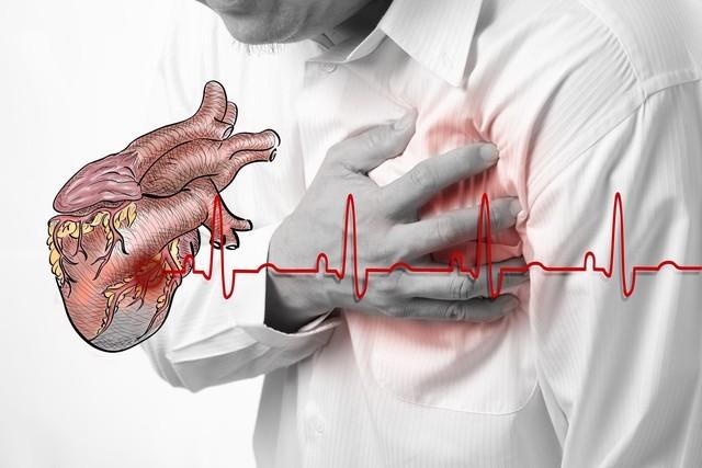 Các triệu chứng của bệnh tim mạch vành