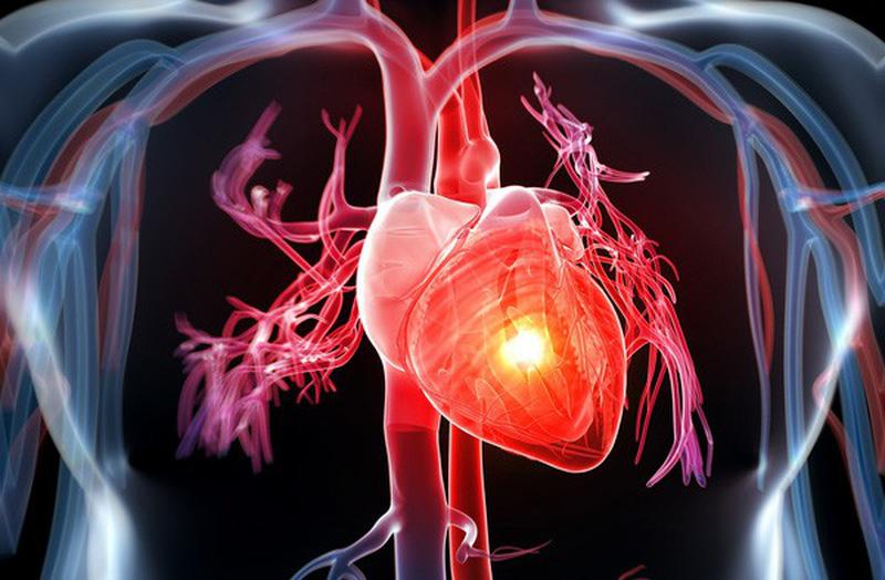 Bệnh tim mạch vành là gì?