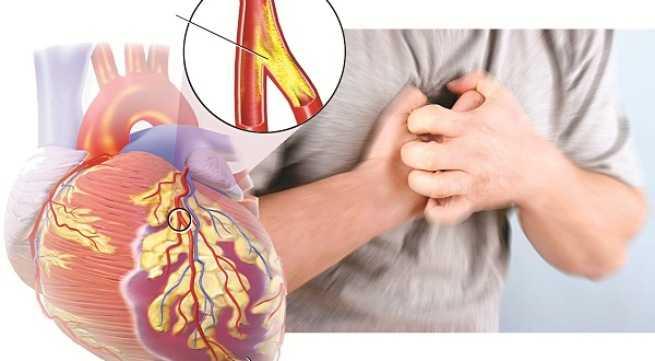Nguyên nhân gây ra bệnh tim mạch vành