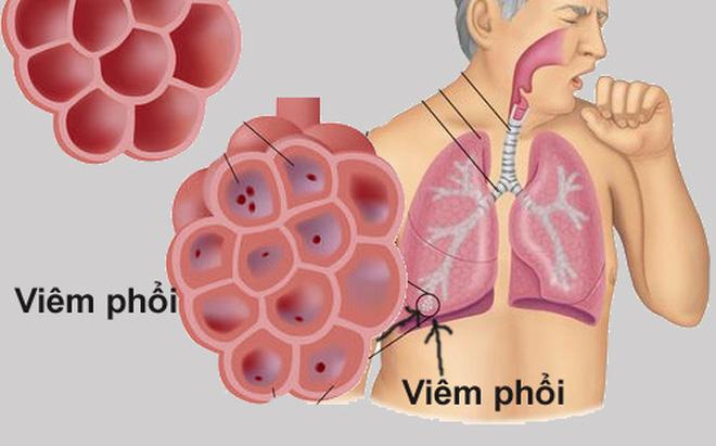 Triệu chứng viêm phổi ở người lớn và trẻ em